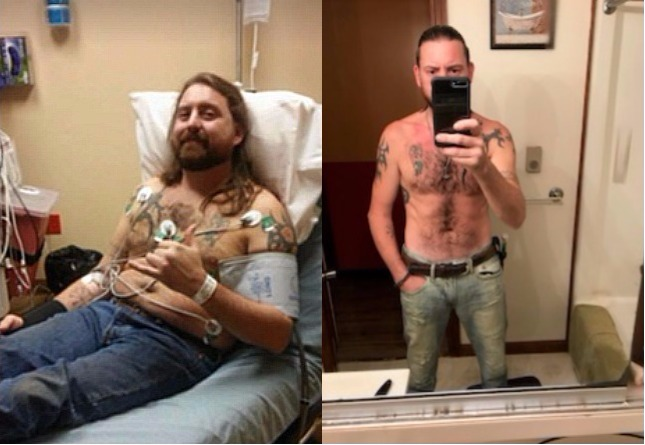 Brad_Before_After